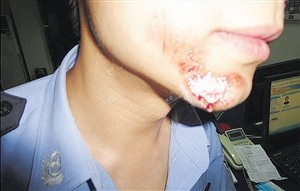 What Do Facial injury Symbolize in Dreams and How to Interpret the Meaning